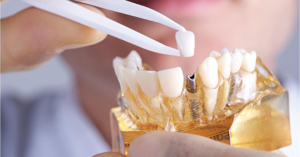 Curasan_April2018Blog_DentalImplants