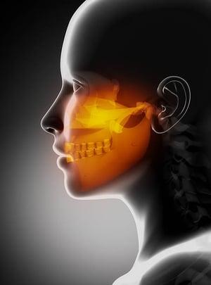 Orange Jaw